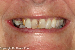 Implant Dentures Before