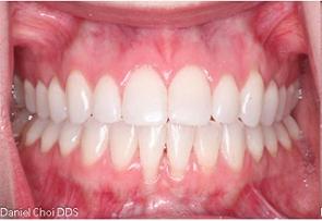 Gum Recession Before