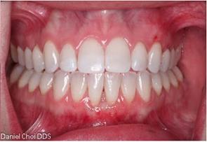 Gum Recession After