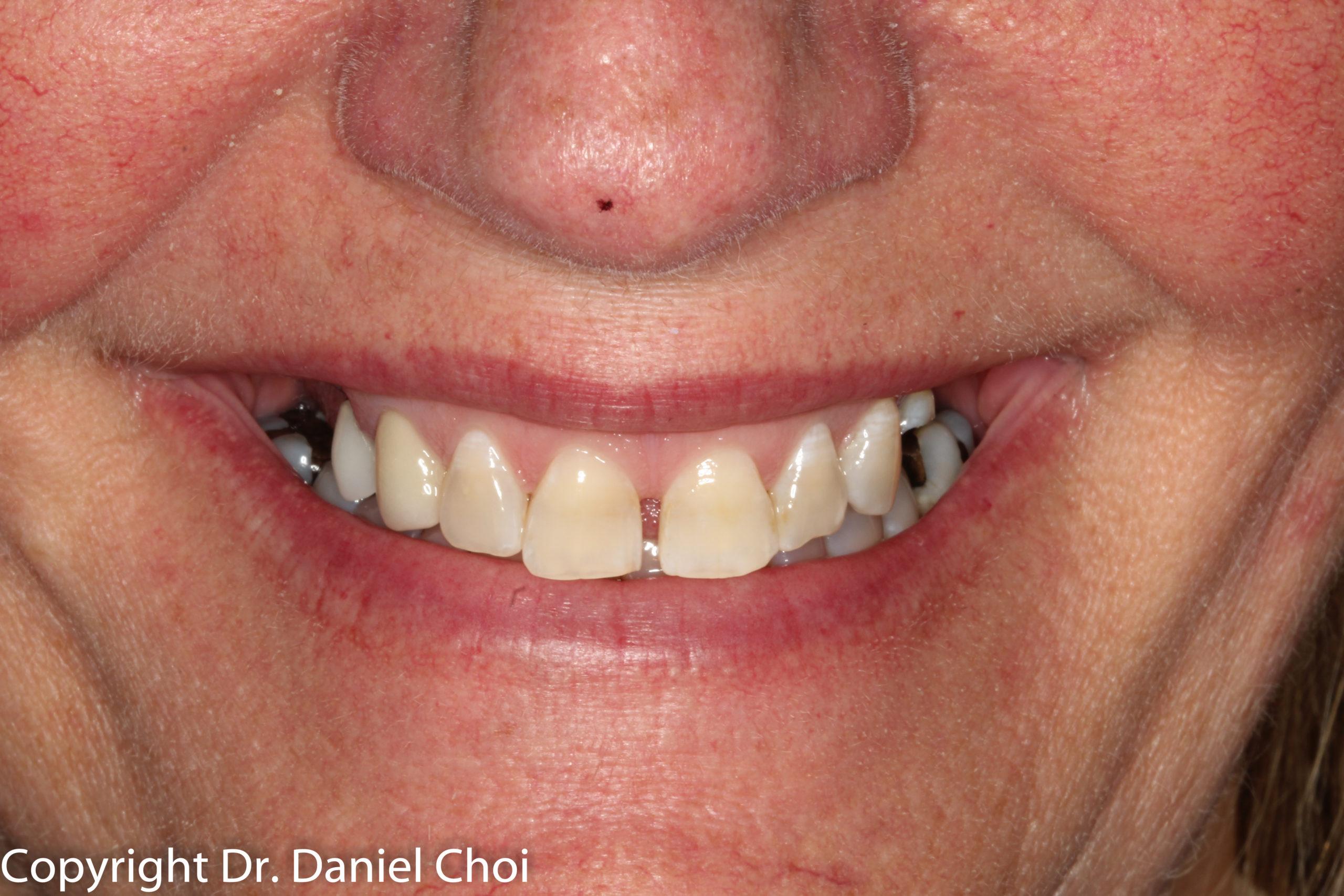 Before Implant Dentures