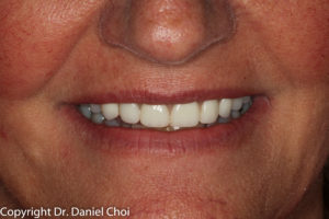 After Denture Implants