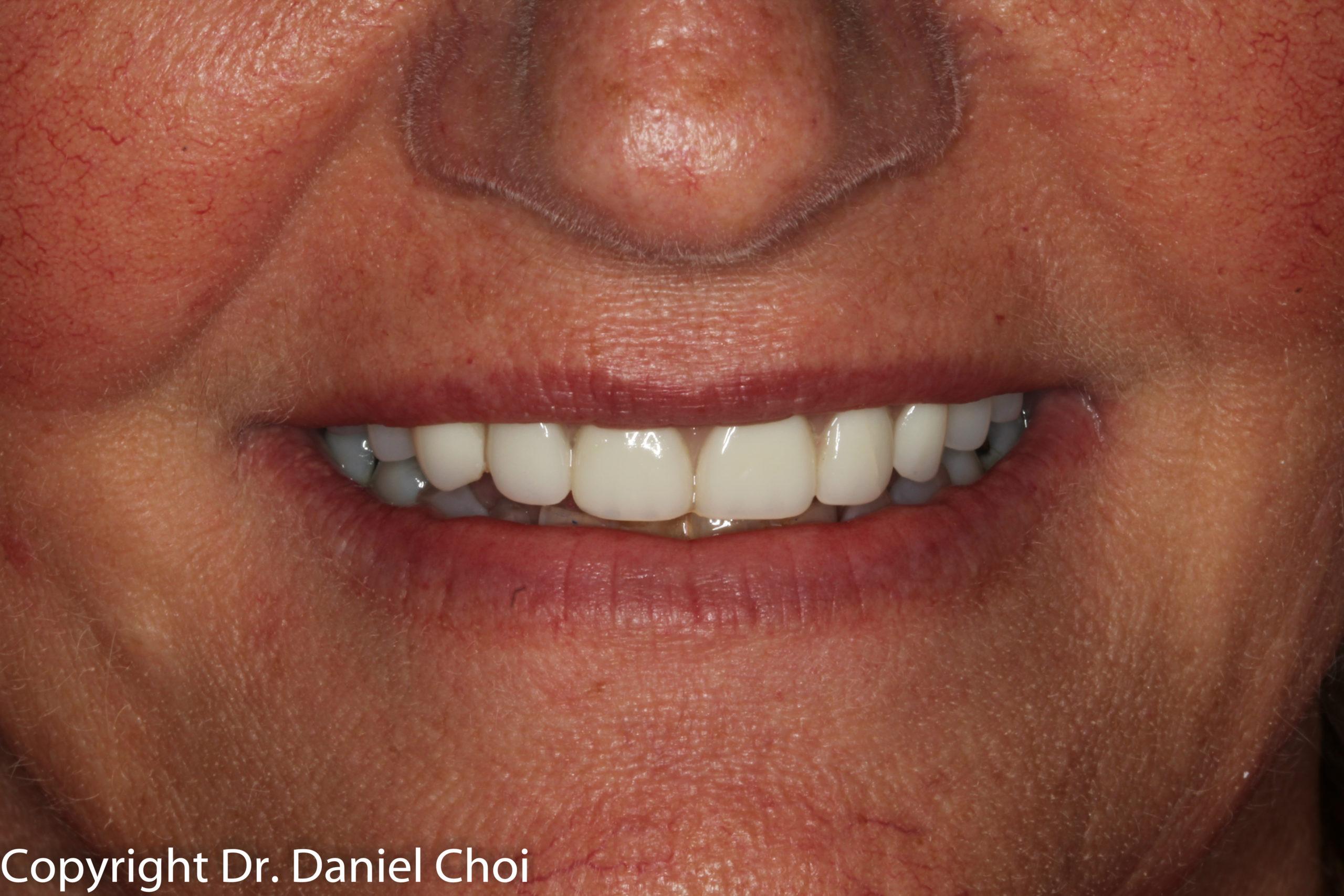 After Denture Implants